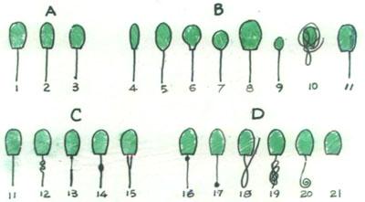 精子形态图.jpg